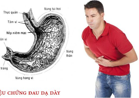 Y tế - 4 triệu chứng đau dạ dày nhẹ cần biết để chữa kịp thời