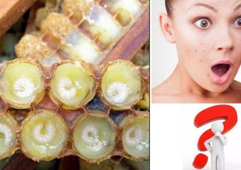 Kinh doanh - Uống sữa ong chúa bị nổi mụn, tại sao?