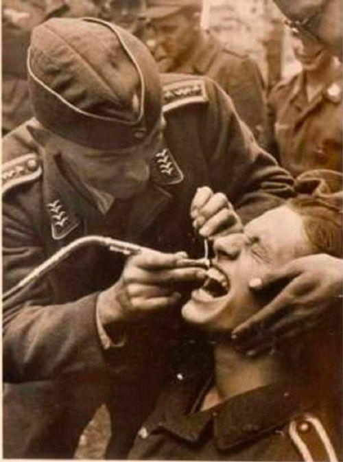 nha-khoa-thuo-truoc Kinh hoàng cách người xưa Nhổ răng bằng kìm, không thuốc tê