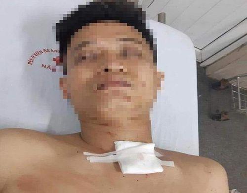 Nghi án nam thanh niên đâm chết bạn gái rồi treo cổ tự tử ở Thái Nguyên - Ảnh 2