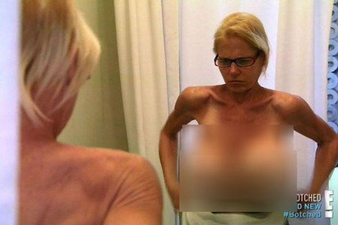 Nằng nặc xin cắt ngực giả nặng tới 13kg dù có mất mạng